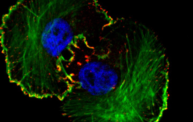 Breast cancer cells with immunofluorescent staining of cell cytoskeleton