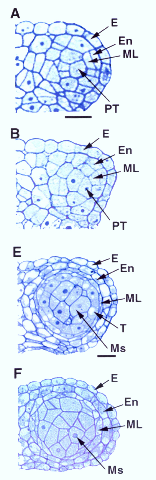 Comparison of the wild-type and ems1 mutant anther development. The microscope images show the upper right lobe of the anther.